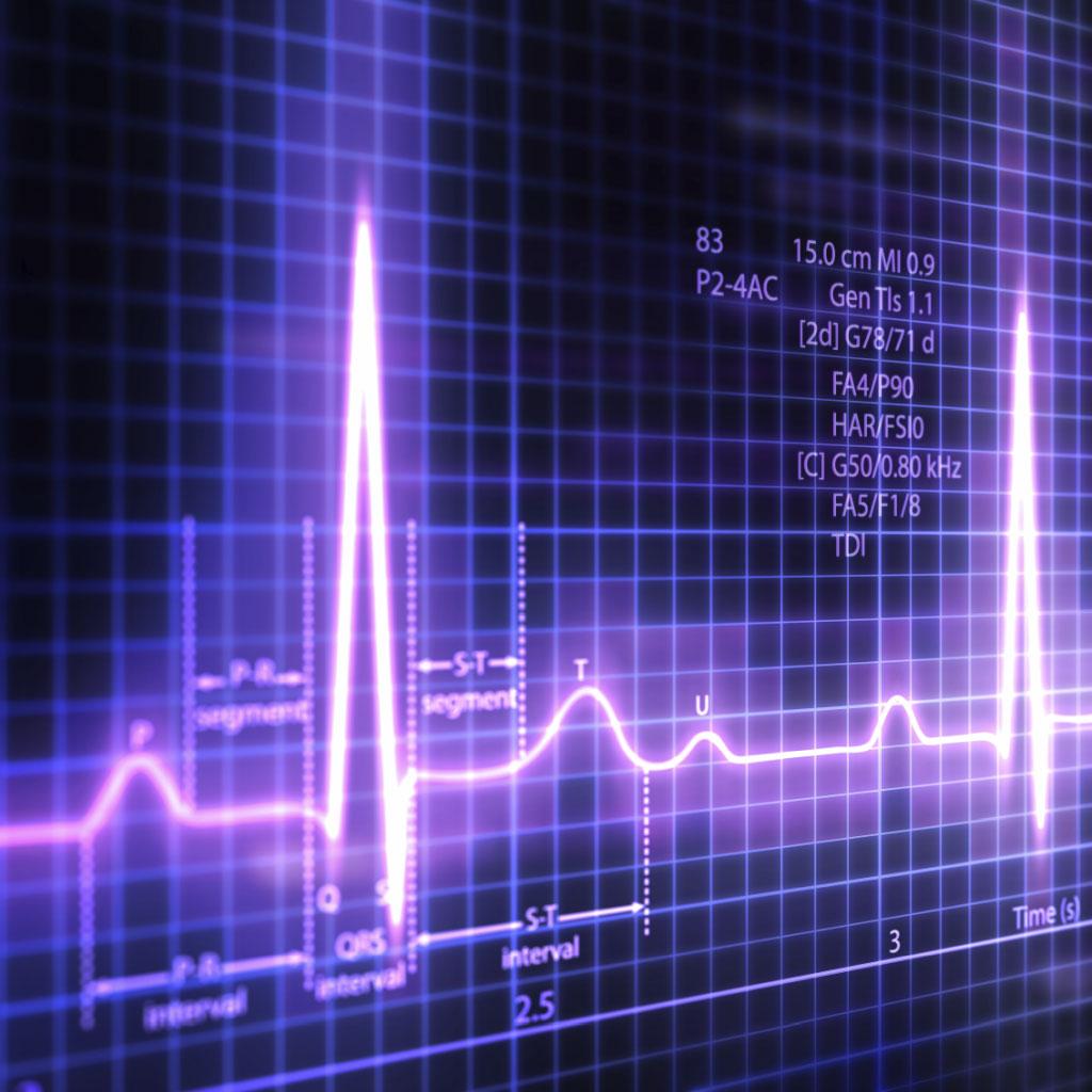 Próba wysiłkowa EKG